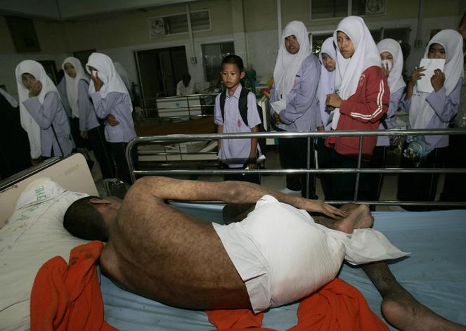 Thailand AIDS Vaccine